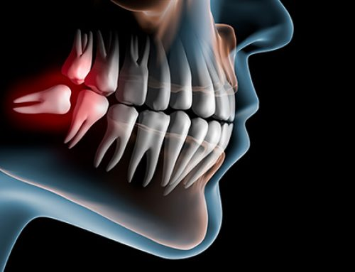 Pulling wisdom teeth can improve long-term taste function, research finds